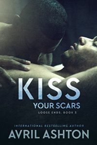7-Kiss-Your-Scars